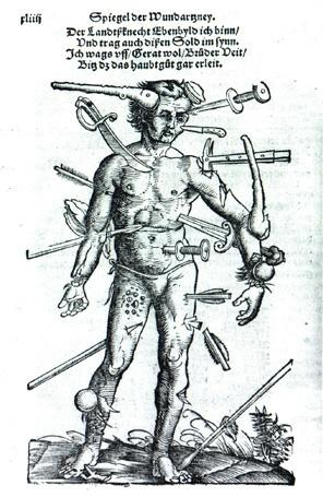 woundman_johannes_wechtlin_fieldbook_of_wound_surgery_1517.jpg
